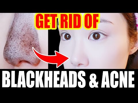 Get Rid of BLACKHEADS & ACNE!【My Skincare Routine 2017】