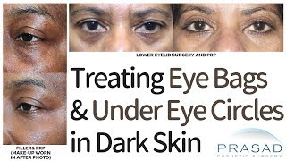 Why Genetic Eye Bags and Dark Circles Don't Just Come from Parents, and How to Treat Them