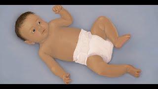 """Bronchiolitis"" by Amanda S. Growdon for OPENPediatrics"