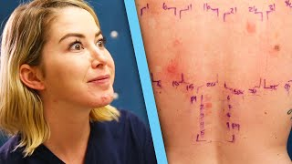 Women Get Makeup Allergy Tests