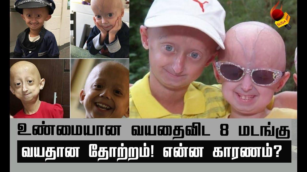 க-ழந-த-கள-ம-த-யவர-கள-க-க-ம-க-ட-ர-மரபண-க-க-ற-ப-ட-progeria