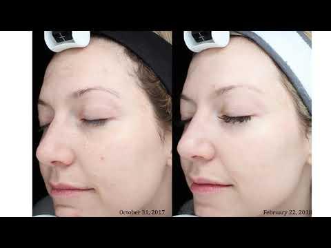 WEBINAR: Spring Ready Skin Treatments
