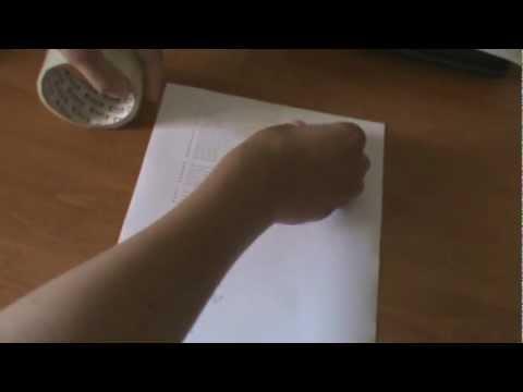 Пяточная шпора — причины, симптомы, лечение