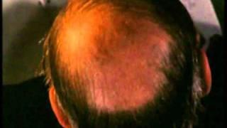 Un Gatto nel Cervello (Trailer Italiano)