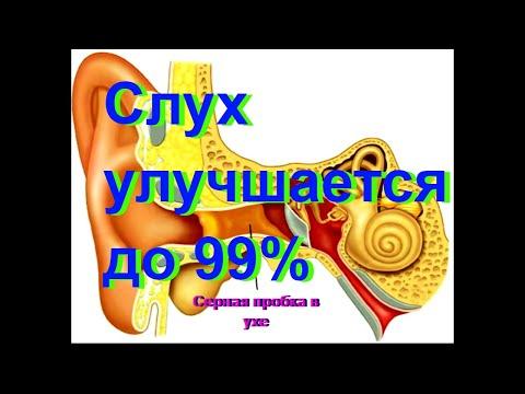 улучшить слух в домашних условиях \