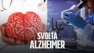 Altra grande scoperta di un team di ricerca italiano, potrebbe aiutare a combattere l'Alzheimer