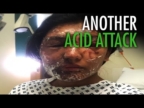 Horrific Acid Attack in London