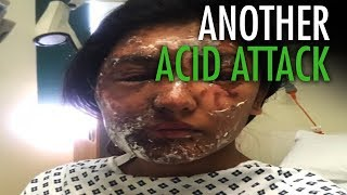 Are acid attacks the result of mass immigration?