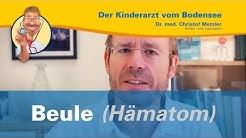 Beule (Hämatom) - Der Kinderarzt vom Bodensee