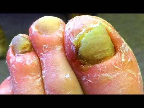 Ingrown Nail Diabetic Foot Treatment Fungating Tumor Discussion
