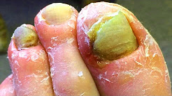 Ingrown Nail & Diabetic Foot Treatment!   Fungating Tumor Discussion