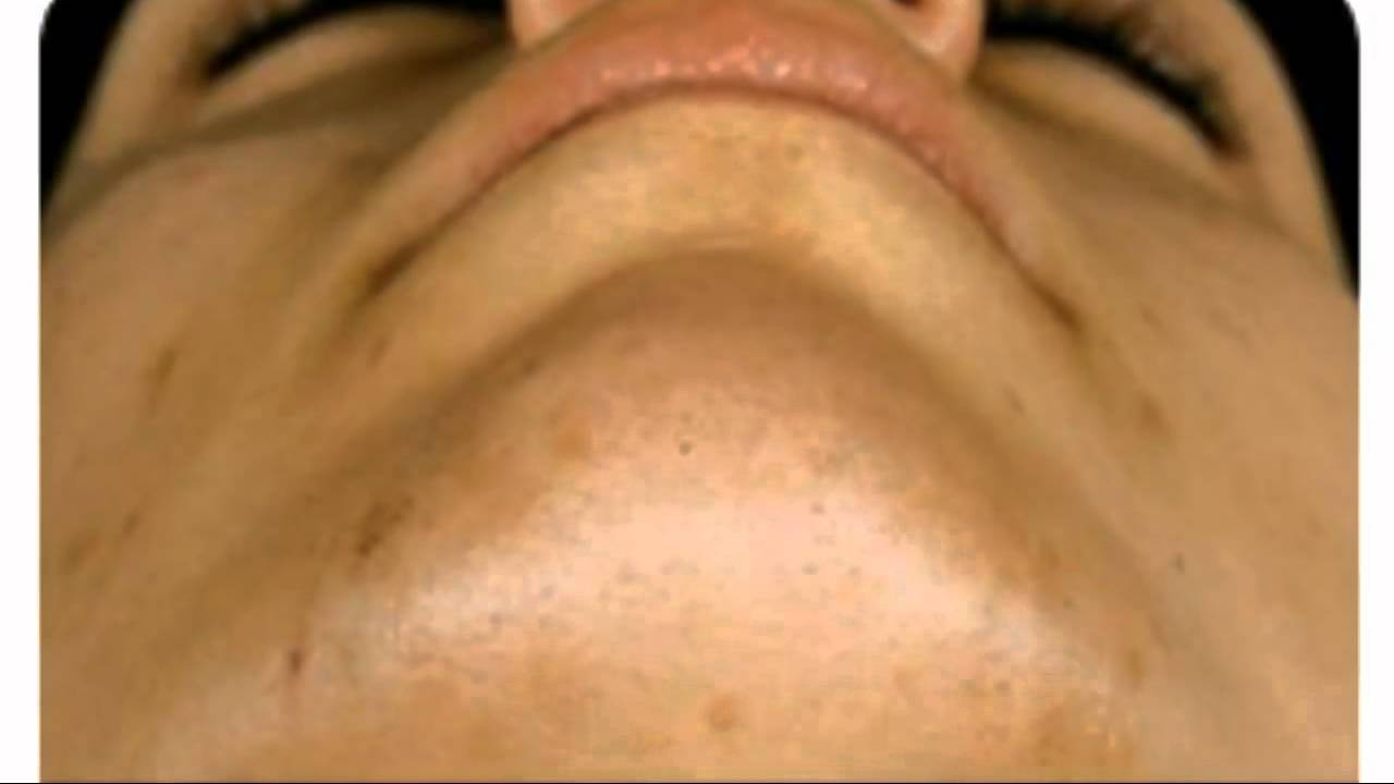 Redwood Laser Hair Removal For Southampton Youtube