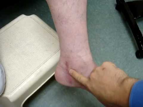 Diabetic Neuropathy better after decompression