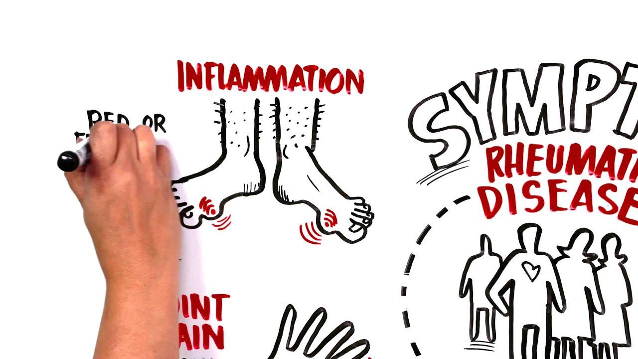 A rheumatologist that treats What a rheumatologist treats in adults 67