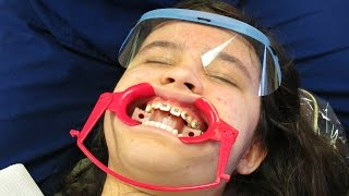 GETTING BRACES ON