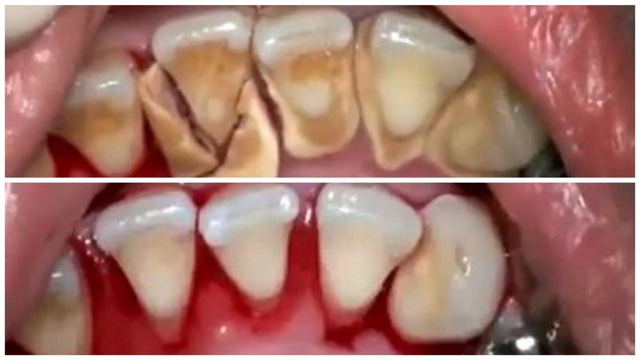 Cara Merontokkan Karang Gigi Dengan Cepat Secara Alami Youtube