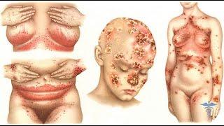 Грибковая инфекция.  Как избавиться