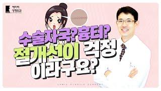 내시경이마거상술 부작용 절개선, 흉터, 수술자국
