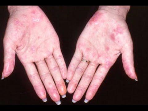 Lupus Hastalığı Nedir? Tedavi Yöntemleri Nelerdir? Kimlerde Görülür?
