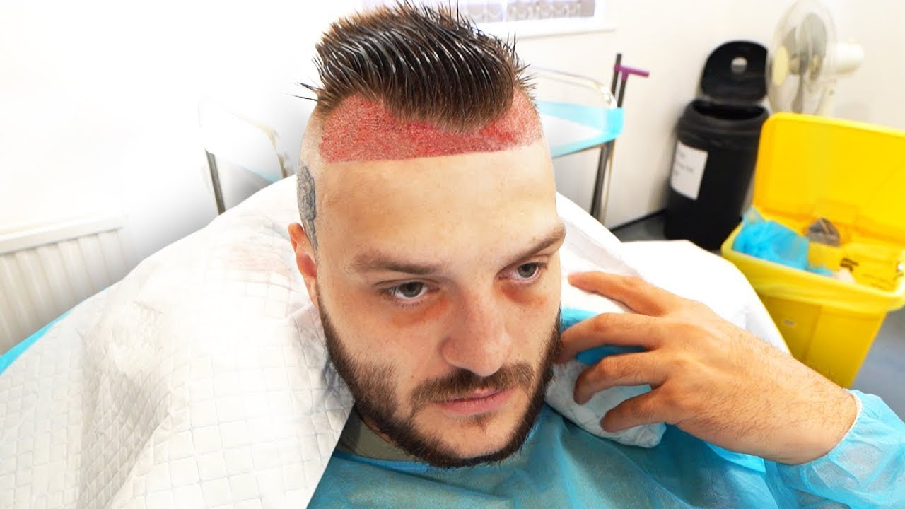 Download TGF DO IT #6 - Hairline Surgery Edition