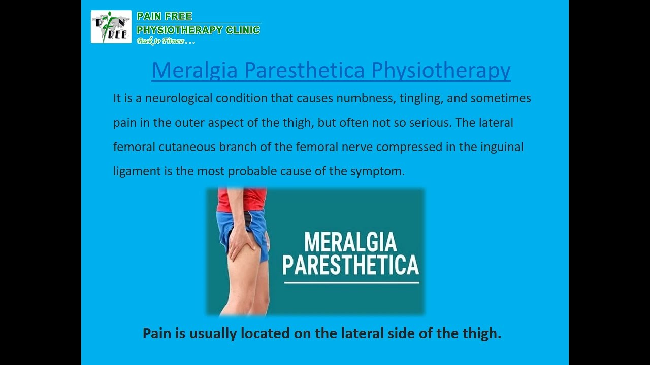 Causes of Meralgia Paresthetica | Pain Free Physiotherapy Clinic
