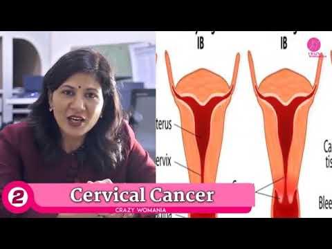 Female Cancer Surgeon in Delhi