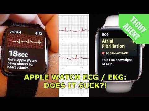 The Apple Watch ECG / EKG sensor - Does it suck?
