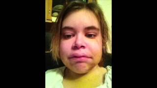 Baixar From No Braces to Braces to 2 Weeks Post-Op Jaw Surgery - Nichole337
