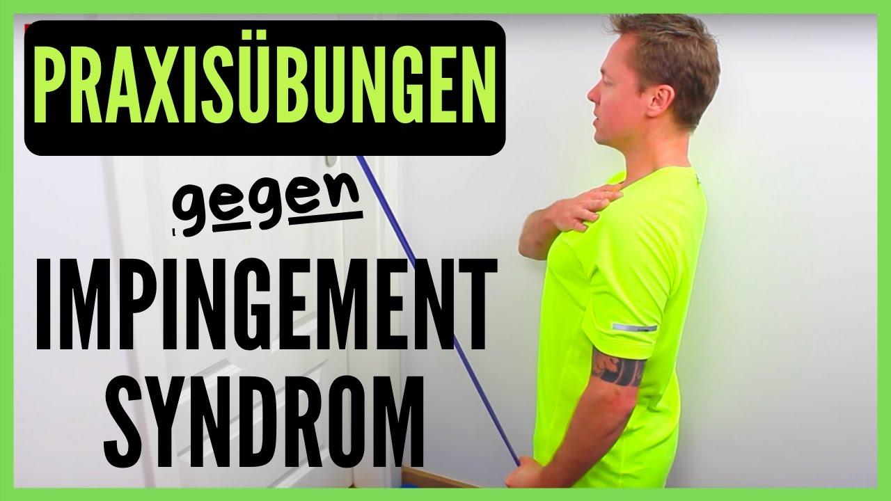 Schulterschmerzen - Impingementsyndrom Teil 3..