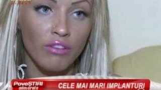 Loredana Chivu cu implanturile