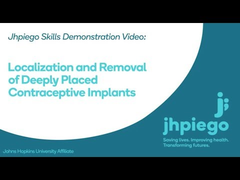 Localization And Removal Of Deeply Placed Contraceptive Implants
