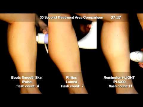 IPL Hair Removal 30 sec test Remington iLIGHT vs