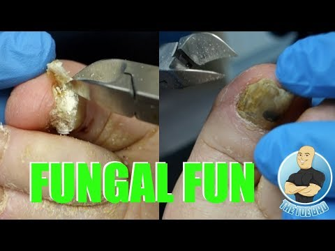EXTREME BAD NAIL FUNGUS TREATMENT #1 - FOOT HEALTH MONTH 2018 #17