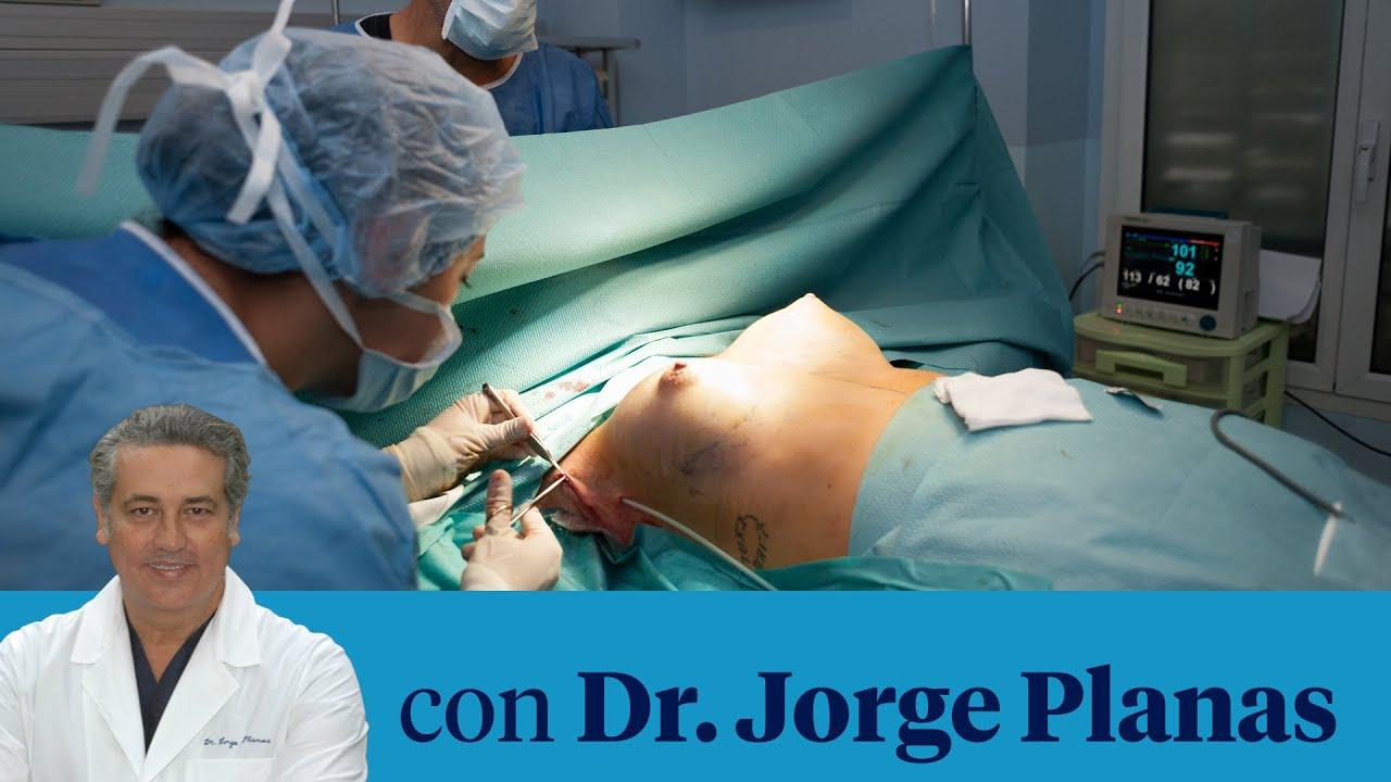 como hacen la cirugia de senos