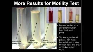 Microbiology: Motility Test