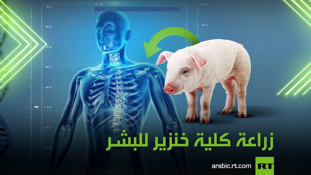 زراعة كلية خنزير للبشر  - نشر قبل 5 ساعة