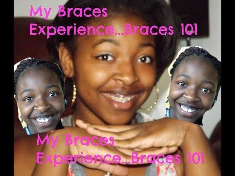 My Experience With Braces// Tip & Advice// 2016 DymondStar® Edition