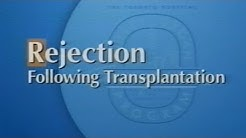 hqdefault - Common Sign Of Kidney Transplant Rejection