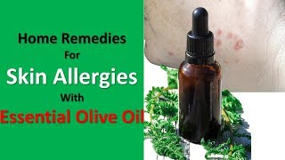 Home Remedies For Skin Allergies With Baking Soda &  Essential Olive Oil