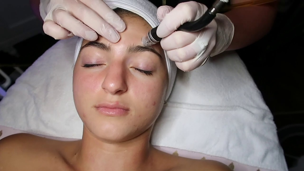 Dermal Infusion Wet Microdermabrasion 1