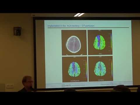 Multimodal Neuromonitoring after SAH - Moscow 2017 Stefan Wolf