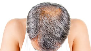 How to Stop Baldness and Regrow Hair Naturally