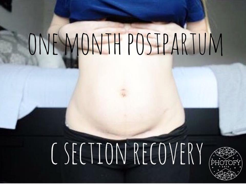 ONE MONTH POSTPARTUM UPDATE AND BELLY SHOT | C-SECTION ...