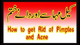 Kil Muhase Aur Dane Khatam Karna |  How To Get Rid Of Blackheads and Pimples In Urdu