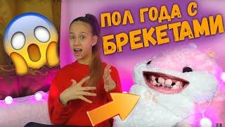 История Моих Зубов и Брекетов