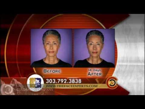 KUSA-TV Channel 9 Highlights Denver Facial Plastic Surgery