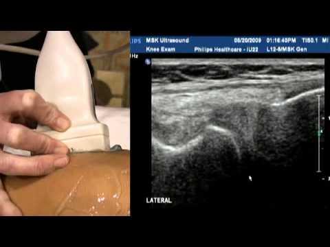 How to ultrasound knee - Kĩ thuật siêu âm khớp gối