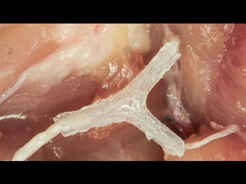 Can 3D Printers Cure Paralysis and Nerve Damage?