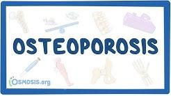 Osteoporosis - causes, symptoms, diagnosis, treatment, pathology