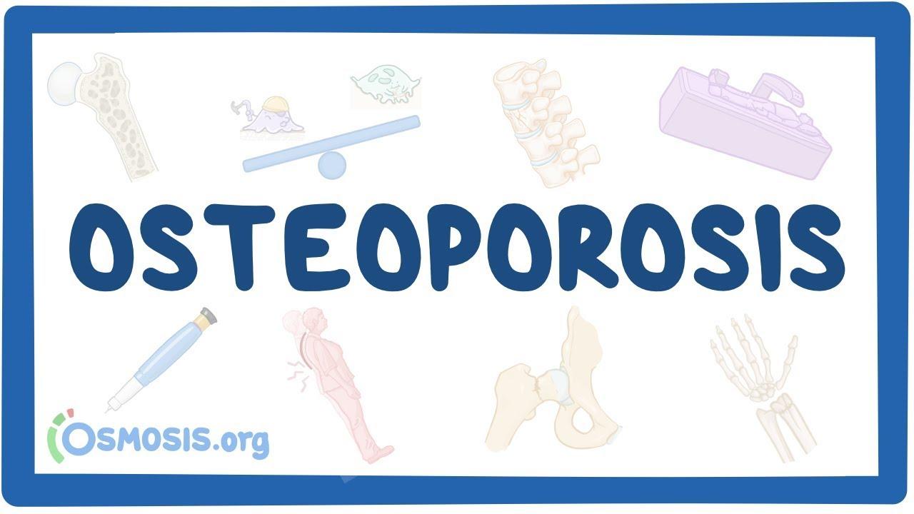 Osteoporosis – causes, symptoms, diagnosis, treatment, pathology